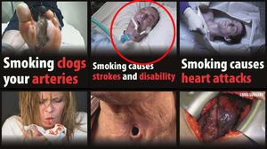 Czy w kampanii antynikotynowej wykorzystano bez zgody zdjęcie umierającego niepalącego mężczyzny?